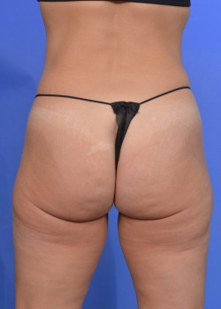 Brazilian Butt Lift Before & After Image