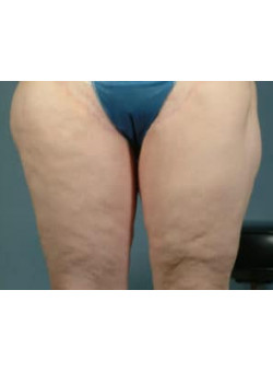 Thigh Lift Before & After Image