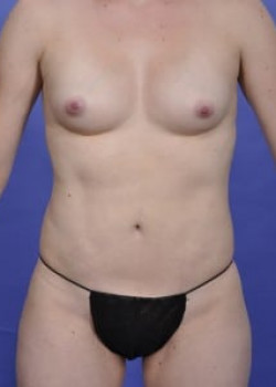 Vaser® 4D Lipo Before & After Image