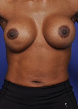 Corrective Breast Surgery Before & After Image