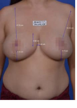 Non-surgical Breast Lift Before & After Image