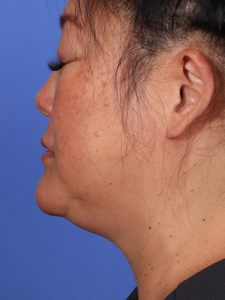 MyEllevate Neck Lift Before & After Image