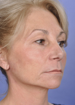 Face Lift Before & After Image
